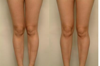 Before & After Calf Implants, San Francisco CA