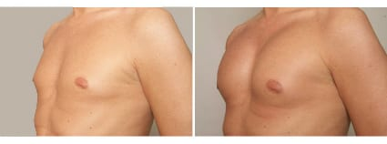 Male Chest Implant Surgery, San Francisco CA