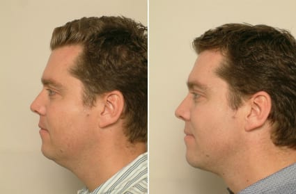 Male Liposuction - Before & After, San Francisco CA