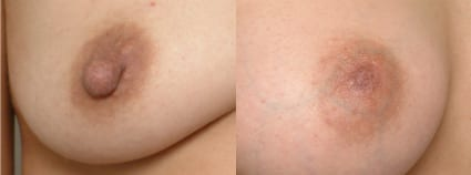 Before & After Nipple Reduction, San Francisco CA