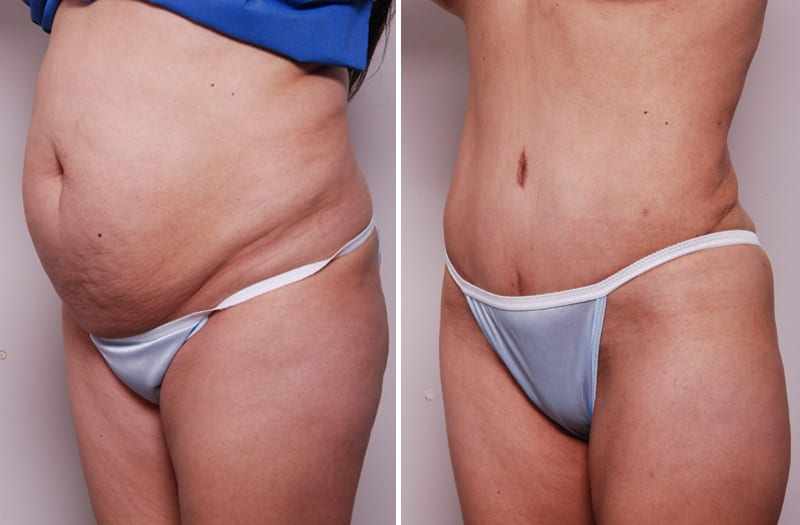 Before & After - Tummy Tuck Surgery, San Francisco CA